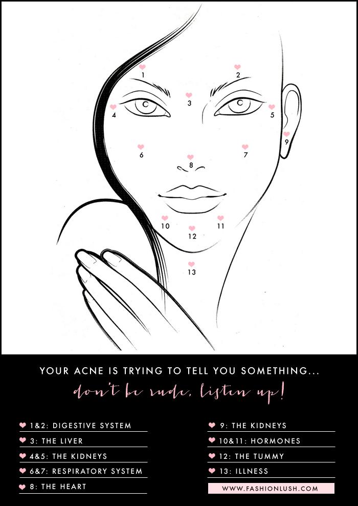 fashionlush, acne face mapping, skincare tips